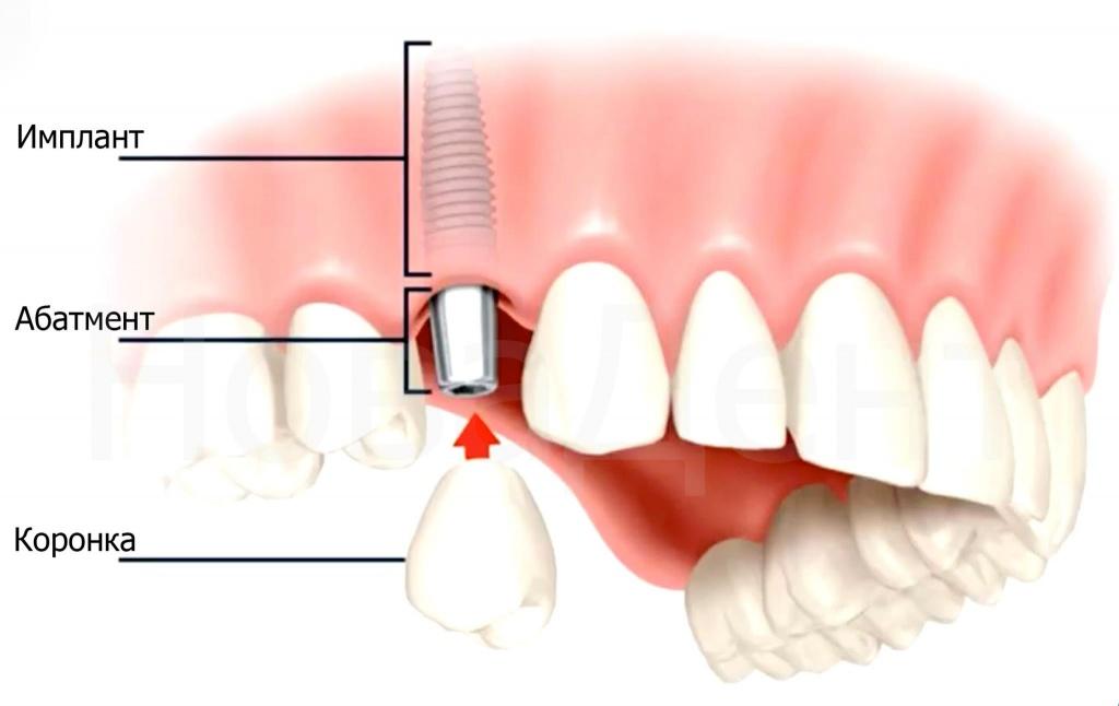 имплантация зубов стоматология на динамо
