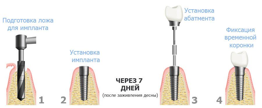 одноэтапная имплантация клиника на Динамо