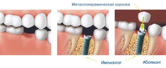 Коронки для имплантов стомотология на Динамо